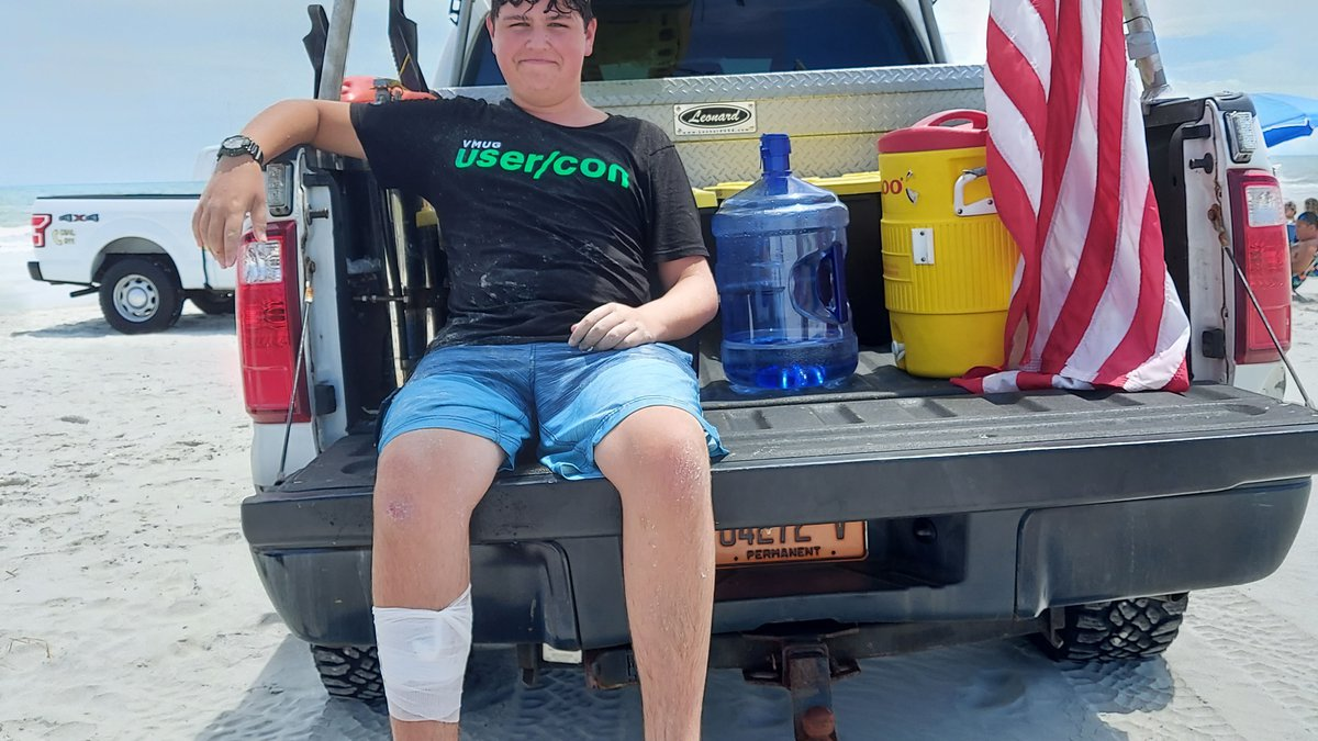 A 15-year-old visiting Wrightsville Beach this week needed more than a dozen stitches after he...