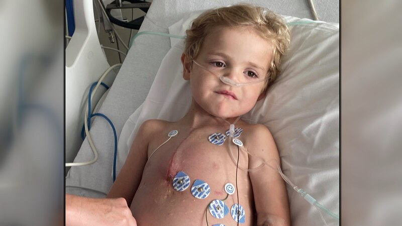 Simms Daniels was born with a rare condition called Hypoplastic left heart syndrome. His dad,...