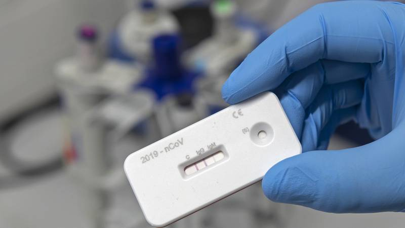 A scientist presents an antibody test for coronavirus in a laboratory of the Leibniz Institute...
